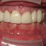 Sage Dental Pocatello Idaho after dental work