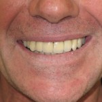Sage Dental Pocatello Idaho Dental Implants